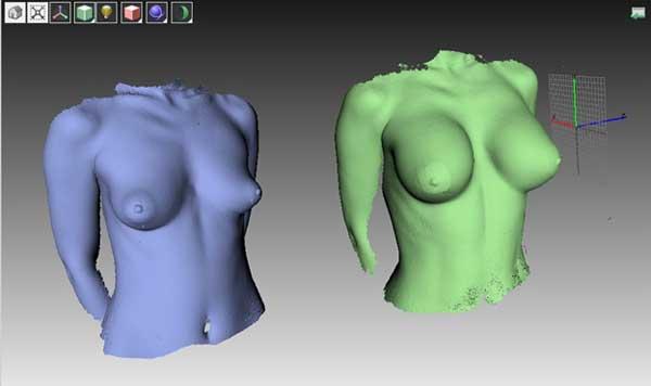 Рис Представление пациенту трехмерных данных позволяет точнее представить изменения груди.
