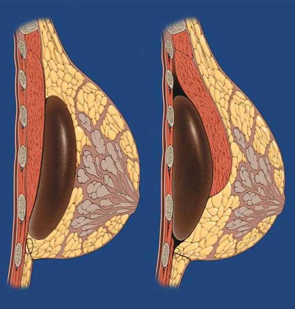 Рис Субгландулярное и субмускулярное расположение имплантата.