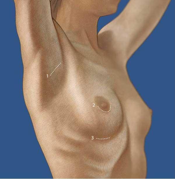Рис Доступы для установки имплантатов 1. Трансаксилярный , 2. Периареолярный , 3. Инфрамаммарный