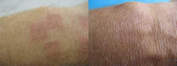 Слева рисунок фракционного лазера на коже через 1 сутки после обработки. Нет раны, боли, умеренная отечность. Справа после заживления. Структура кожи не изменена, нет потери пигмента.