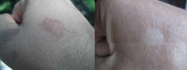 Слева – сразу после обработки абляционным лазером. Справа – изменение текстуры кожи и потеря пигмента навсегда.