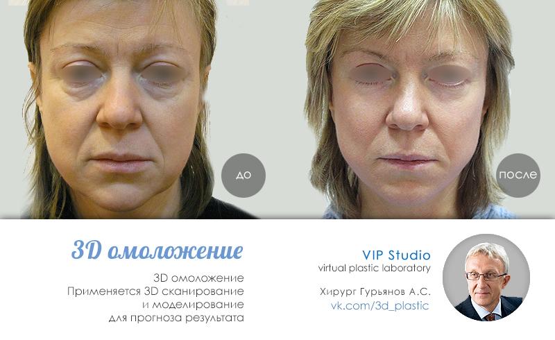 Alba botanica маски для лица