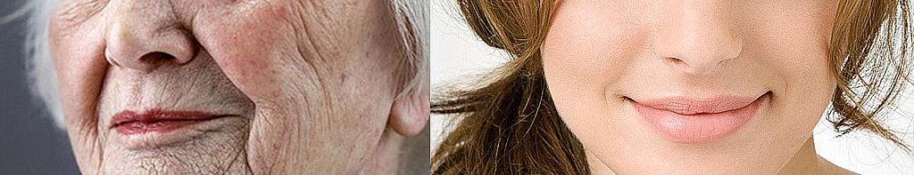 Гурьянов А.С. пластический хирург БУлХОРН BullhorN vy пластика хейлопластика хирургия губ