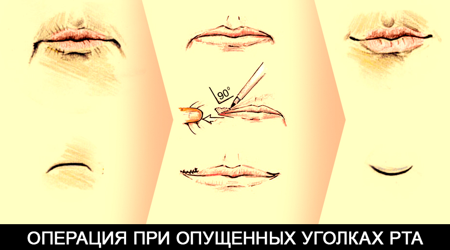 коннерлифт - метод подтяжки уголков губ Гурьянов А.С.