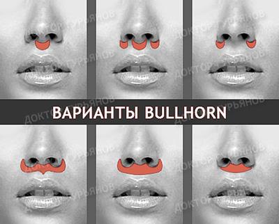 губы булхорн Гурьянов Bullhorn доктор Гурьянов пластика губ