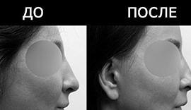 краниопластика, эстетическая краниопластика, форма лба, форма затылка, форма головы, форма черепа, исправление формы черепа, исправление головы, исправление формы лба, исправление формы затылка, операция на голове, операция на черепе, операция на затылке, операция на лбе, операция на лбу, доктор гурьянов, хирург гурьянов, гурьянов андрей станиславович, пластическая хирургия, пластическая хирургия головы, пластическая хирургия лба, пластическая хирургия черепа, пластическая хирургия затылка, пластический хирург, съемки операции, кадры из операционной, как проходит операция, пластический хирург гурьянов, восстановление лба, восстановление черепа, восстановление затылка, титановые пластины для головы, титановые пластины, vip-studio, vip studio, вип студио москва, вип студия москва, вип студио, вип студия, трехмерная модель, трехмерное моделирование, трехмерная пластика, трехмерный имплантат, 3Д модель, 3д моделирование, 3д хирургия, 3D хирургия, 3d модель, 3d моделирование, 3д пластика, 3d пластика, 3д имплант, 3д имплантат, 3d имплант, 3d имплантат, лобный имплант, лобный имплантат, имплант для головы, имплантат для головы, имплант для затылка, имплантат для затылка, силиконовый имплантат, силиконовый имплант, имплант для лба, имплантат для лба, индивидуальный имплантат, индивидуальный имплант, изготовление имплантата, изготовление импланта