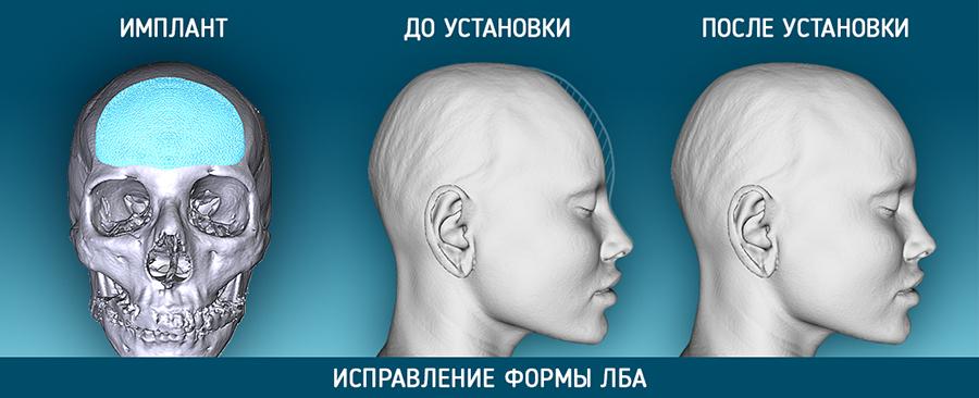 краниопластика_коррекция_лба