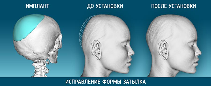 краниопластика_коррекция_затылка
