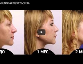 Подглазничные имплантаты. Новое видео Гурьянова А.С.