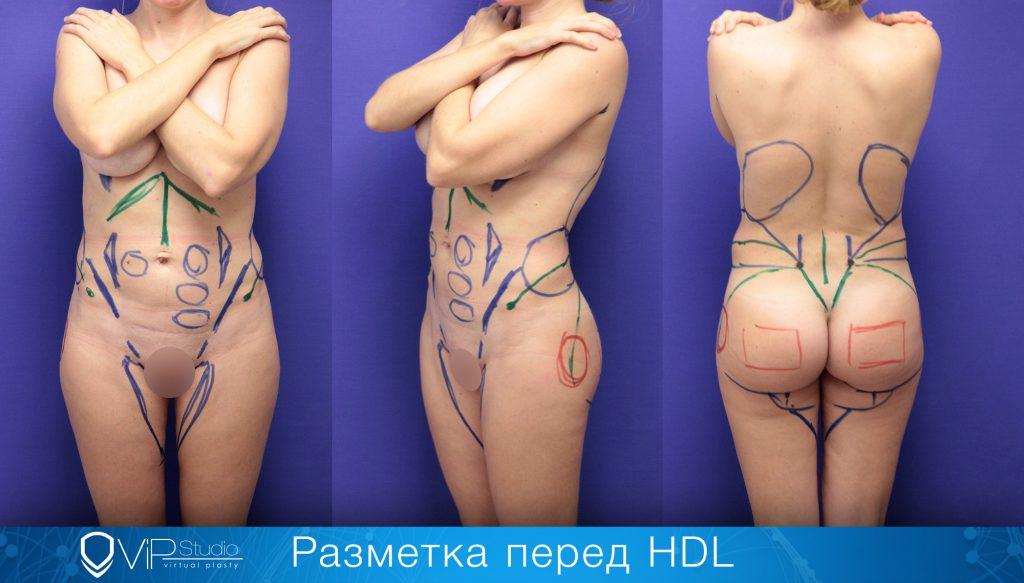 Гурьянов HDL липосакция