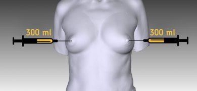 липофиллиг груди